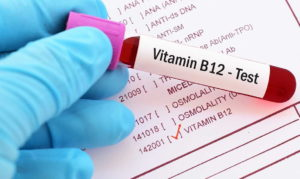 Vitamin B-12 and BLOOD WORK FOR STEROID USERS