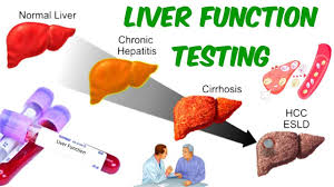 Liver Function test and BLOOD WORK FOR STEROID USERS